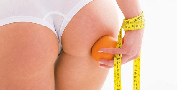 10 najefikasnijih tretmana protiv Celulita, mehanizmi nastanka