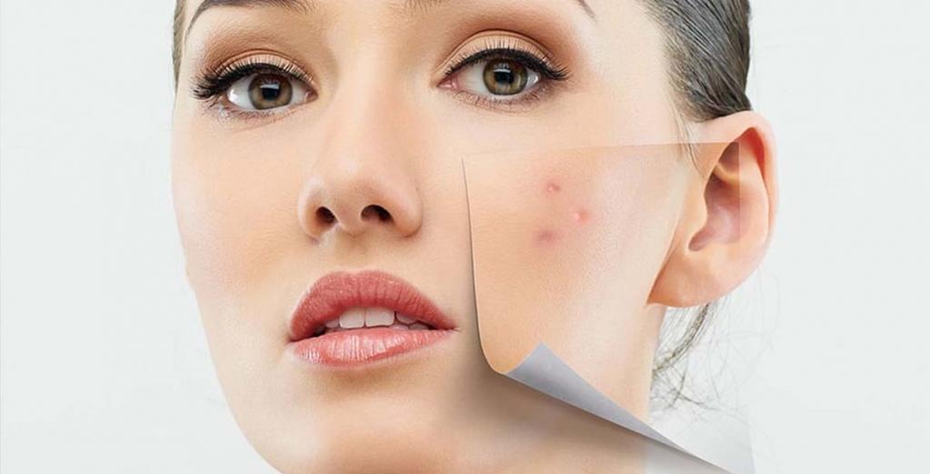 Skin transfer - Hijaluronskom kisjelinom, Kolagenom, Elastinom...